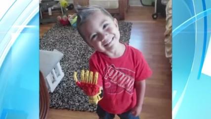 iron-boy-la-prothese-de-main-iron-man-pour-un-garcon-de-3-ans-une